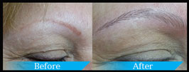Cosmetic Tattooing Microblading Eye Brows